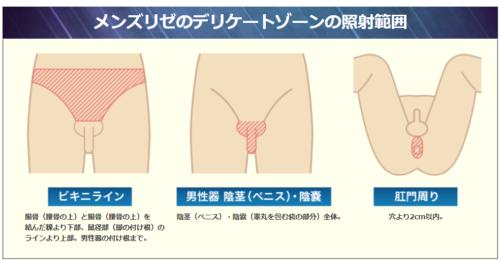 メンズリゼのデリケートの照射範囲 ビキニライン 男性器 陰茎(ペニス) 陰嚢 肛門周り