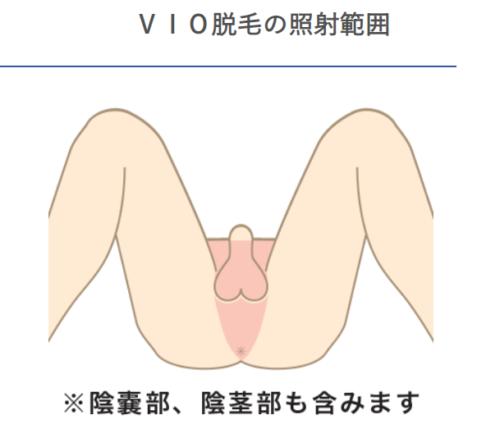 札幌クララ美容皮膚科 メンズ脱毛 VIO脱毛の照射範囲