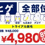 【札幌、仙台、広島院限定】激安トライアル!ゴリラクリニックの口コミはどう?