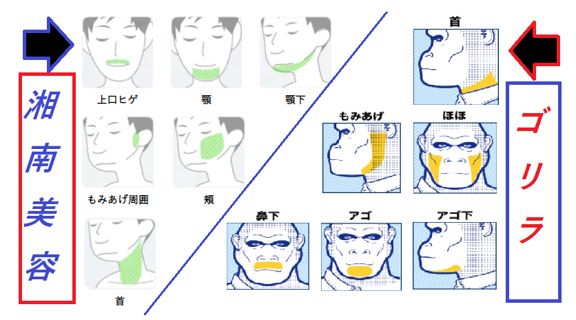 湘南美容外科とゴリラクリニックのヒゲ脱毛の料金比較表