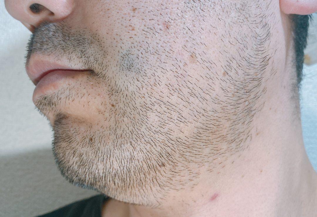 男の左頬1週間、髭を伸ばした感じ
