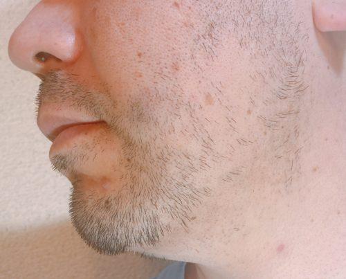 男性の左頬のヒゲが伸びた写真